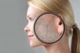 Хлопья кожи: что делать и как решить эту проблему (рецепты эффективных масок для лица)