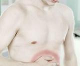 Как свидетельствуют заболеваниях желудка